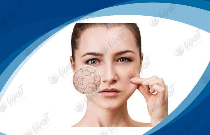 خرید بهترین دستگاه آنالیز پوست صورت