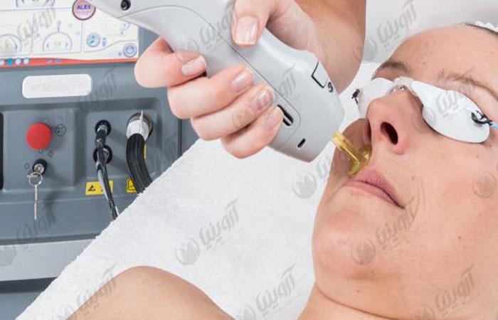 فروش دستگاه لیزر الکساندرایت گرویتی