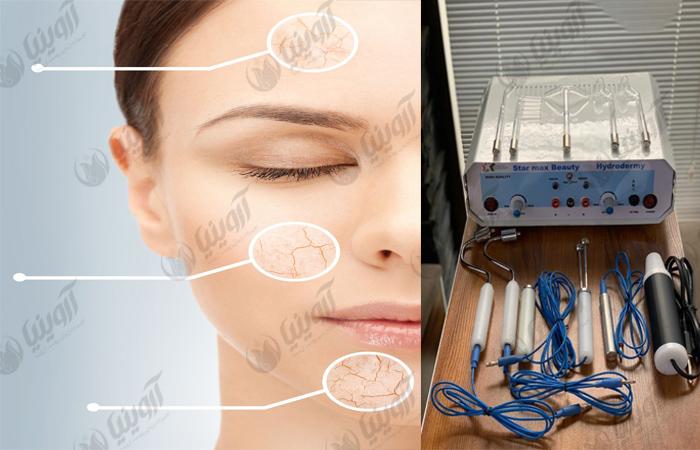 فروش دستگاه هیدرودرم استارمکس با کیفیت و قدرت مناسب