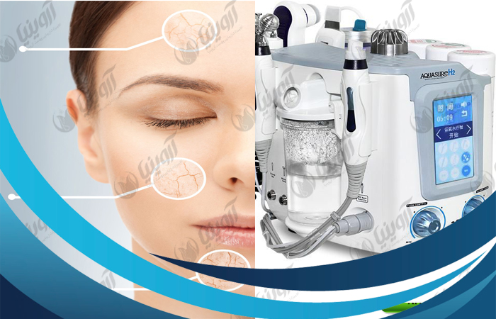 مرکز واردات و فروش دستگاه آکواشور 3 هندپیس با بهترین قیمت
