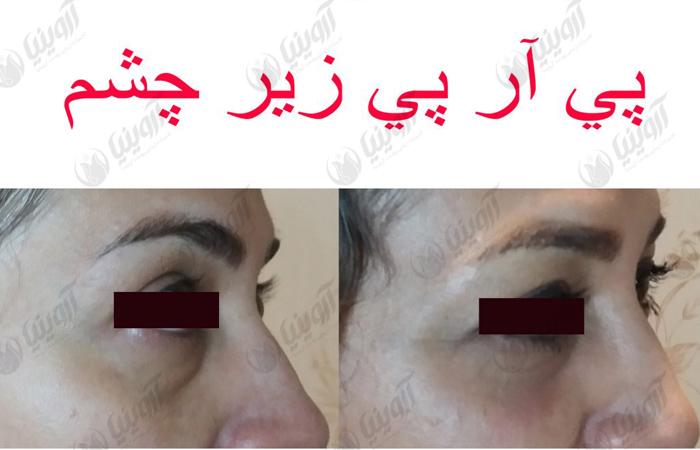 قیمت دستگاه سانتریفیوژ پی آر پی ایرانی